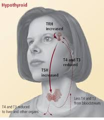 a normal thyroid gland left releases the correct amount of thyroid hormone t4 and t3 if the thyroid gland fails to release the correct amount right