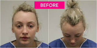 traction alopecia due to tight bun
