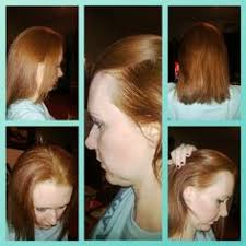 Male Pattern Baldness In Women Impressive Top 48 Leading Causes Of Hair Loss In Men And Women You May Not Know