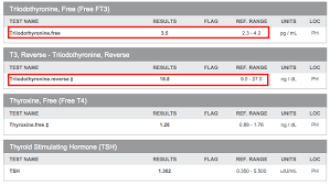 Anti Tpo Thyroid Antibody Guide Symptoms Optimal Ranges