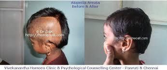 Alopecia areata : Know about Alopecia areata