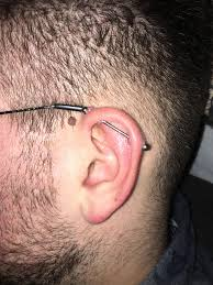 My Partner Has Had An Industrial Piercing For 4 Months Now First