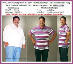 weight gain after gastric byp surgery gastric sleeve before and after and what you can expect post