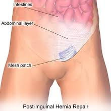 testicular hernia. inguinal hernia patch. animation in the reference. testicular r
