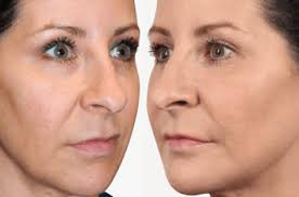 Facial Rejuvenation Cosmetic Acupuncture Points Chart Skin Biolite
