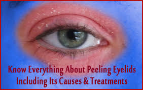 Know Everything About Peeling Eyelids Including Its Causes ...
