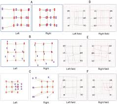 Diplopia Charts Of Computerized Diplopia Test And Hess
