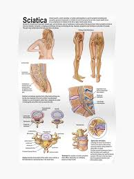 Nerve Chart Leg Medical Chart Showing The Signs And Symptoms Of Sciatica Poster