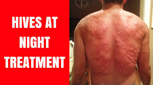 Hives at Night - Hives at Night Face - Hives at Night Causes - Hives ...