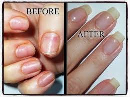video tutorial natural nail recovery and repair process after years worth of acrylic and gel damage