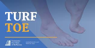 Comprehensive Turf Toe Treatment ...