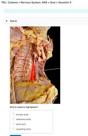 Best abdominal wall and acute abdomen interview questions and answers. Solved Pal Cadaver Nervous System Ans Quiz Questi Chegg Com