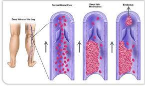 thrombosis diagram