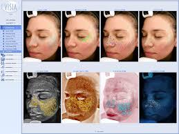 Skin Analyzer Device Skin Observed System Skin Analysis