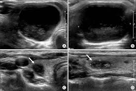 Image result for ethanol ablation for thyroid cysts