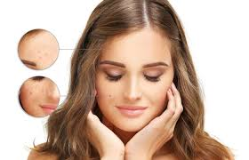 Image result for Treats Pigmentation