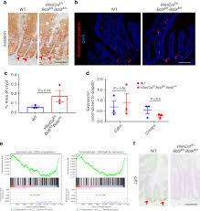 Loss Of Bcl9 9l Suppresses Wnt Driven Tumourigenesis In