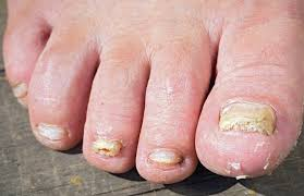 the truth about toenail fungus remes