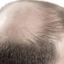 """Résultat de recherche d'images pour """"hair surgery singapore"""""""