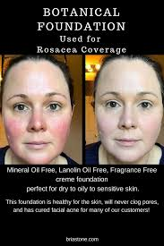acne rosacea s best anti redness makeup best cover up for sensitive skin best cover up