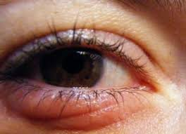 causes of itchy swollen eyes