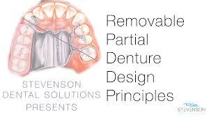 Principles Of Removable Partial Denture Design Rpd Design Kalde Bwong Co