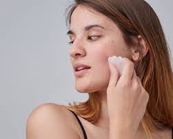 how to get rid of fungal acne