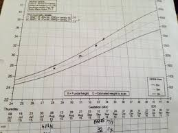 Pregnancy Percentile Chart Confused By Tummy Measurements And Centile Graph Netmums