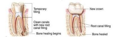 For the most part, root canal. Root Canal Retreatment Root Canal Center Of Naples