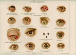 Eye Diseases Chart 1894 Antique Eye Disease Diseases Antique Medical Human Anatomy Color Lithograph Print