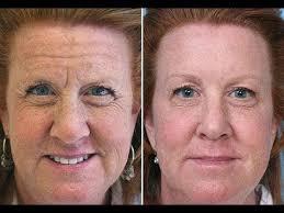 head wrinkles treatment