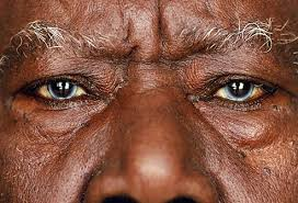 Pics Of Eyes Pictures Of What Eye Color And Shape Say About Your Health