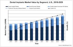 Dental Implants Market Analysis Size Trends Global