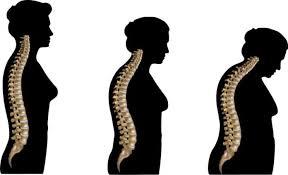 Αποτέλεσμα εικόνας για Οστεοπόρωση