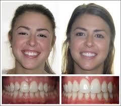 philadelphia orthodontist cosmetic