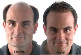 Cure For Male Pattern Baldness Simple Baldness Cure By 48 Shiseido A Japanese Cosmetic Company