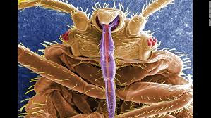 this is a digitally colorized electron micrograph scan of the underside of a bed bug