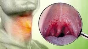 Image result for مرض سرطان البلعوم الأنفي