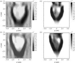 An Ii B B Microwave Tomography Review Of The Progress Towards Clinical