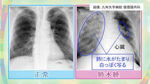 肺 に 水 が 溜まる 病気