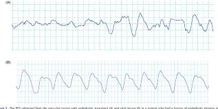 Perfusion Index Chart Figure 3 From Oxygen Saturation And Perfusion Index From