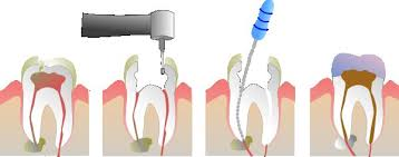 I Have A Root Canal What Are My Options Orawellness
