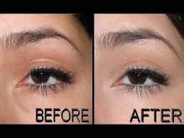 concealing under eye puffiness bags below the eyes