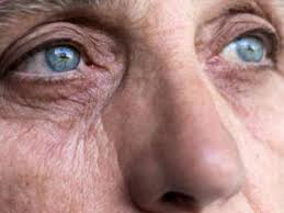 Glaucoma Types Causes And Symptoms