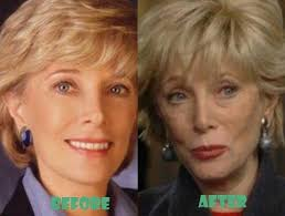 Lesley young age and current photo