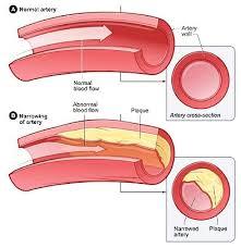 coronary artery disease essay cardiovascular diseases essays and  coronary artery disease essay cardiovascular diseases essays and lectures