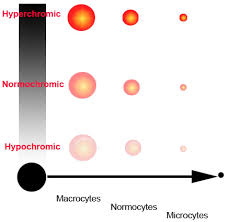 Mcv Levels Chart Blood Cell Indices Mcv And Mchc