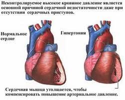 Valu südames
