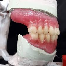 encerado prÓtesis completa teeth tooth toothless extraction cirugabucal oraisurge ry