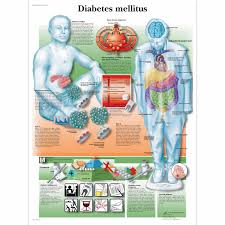 Biology Charts And Posters Diabetes Mellitus Chart